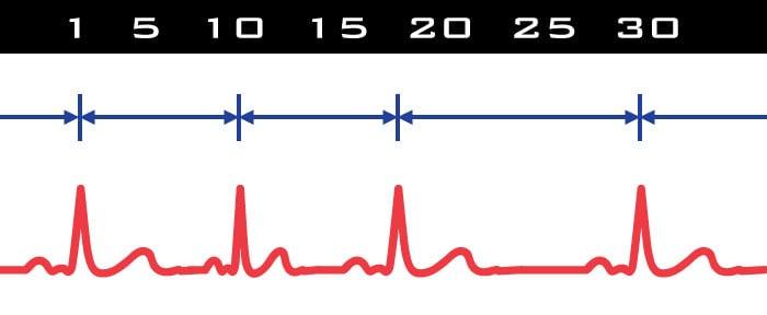 HRV-vs.-IMP_2_peaktiming
