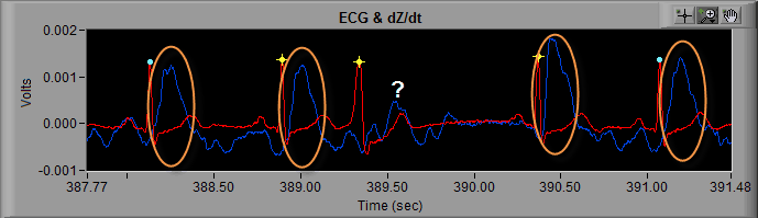 All About ECG Part 5: Identifying and Handling Cardiac Arrhythmia