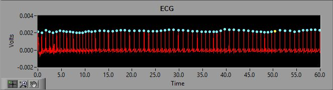 ECG signal with 60Hz Notch filter