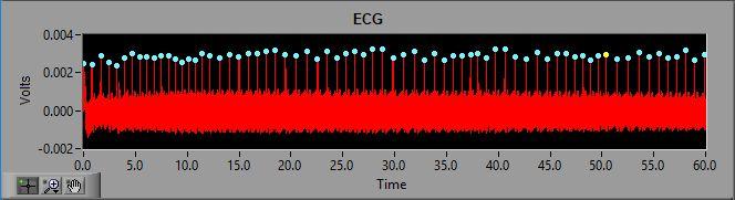 ECG signal with 60 Hz noise